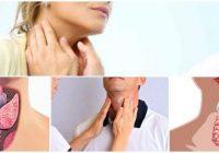 cual es el tratamiento natural para la tiroides alta