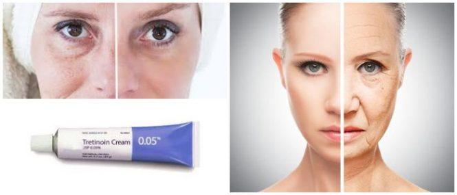 la tretinoína para el acné