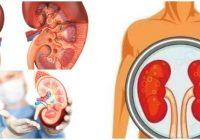 cuales son los síntomas de uremia alta