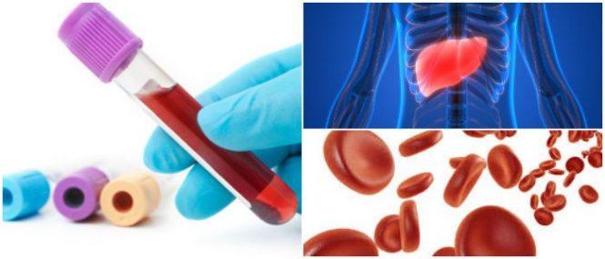 como se realiza el análisis de la uremia baja