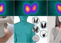 por que se produce infertilidad por yodo radiactivo