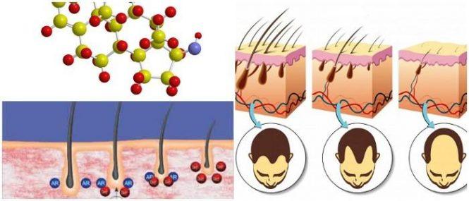 cual es la relación entre la dihidrotestosterona y el acné