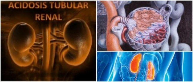 que es la acidosis tubular renal