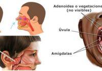 cual es la anatomía de las adenoides