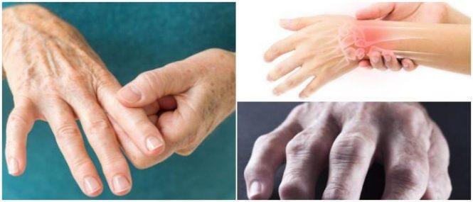 cuales son los síntomas de la artritis