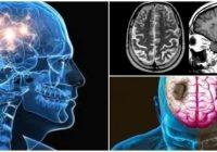 definición de atrofia cerebral