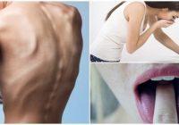 cual es la relación entre la bulimia y anorexia