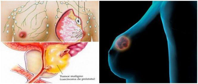 el dietilestilbestrol como anticonceptivo