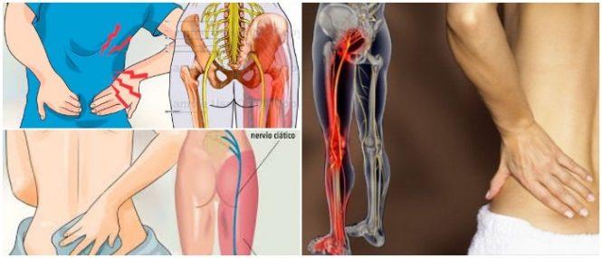 cual es el tratamiento de dolor ciático