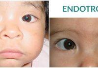 cirugía para la endotropia infantil