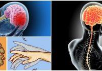 cuales son las imágenes del enfermedades del sistema nervioso