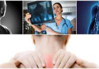 cuales son los síntomas de la estenosis cervical