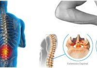 estenosis espinal o hernia de disco
