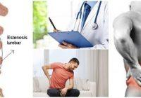 cuales son las causas de la estenosis lumbar