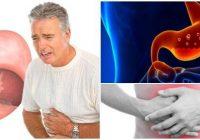 cual es la definición de gastritis aguda