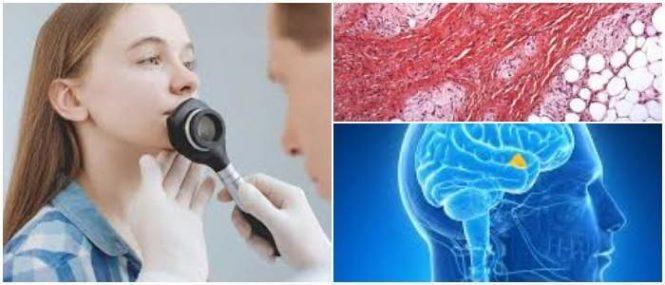relación entre un hamartoma y un tumor