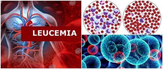 cuales son los síntomas de la leucemia en niños