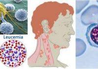 que indican los linfocitos altos