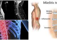 cual es la definición de la mielitis transversa