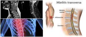 Mielitis Transversa: Causas, Síntomas, Diagnóstico ...