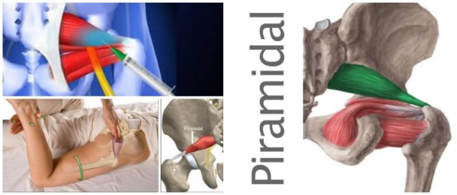 Musculo Piramidal: Definición, Ubicación, Anatomía, Función ...