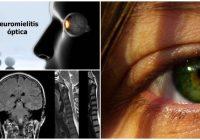 que es la neuromielitis óptica