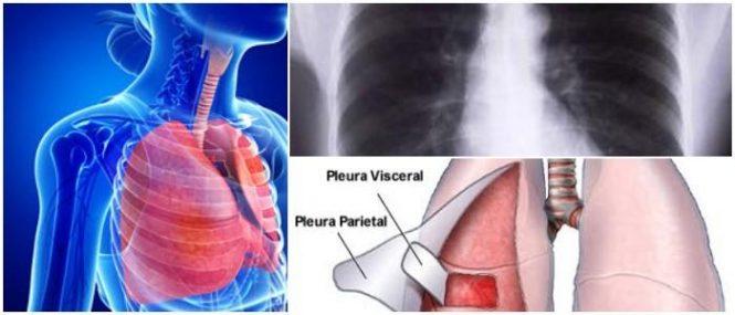Pleura: Definición, Estructura, Función, Mecanismos, Enfermedades ...