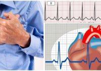 que es la taquicardia ventricular