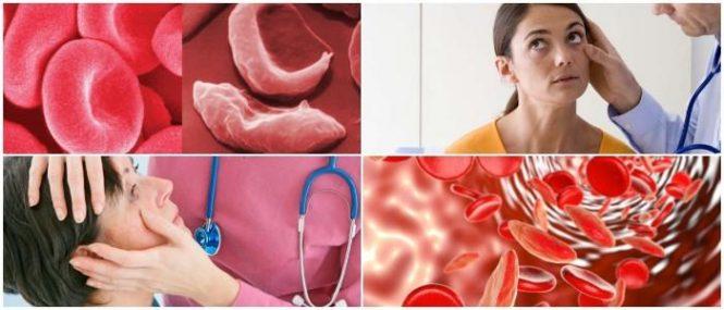 que es la anemia aguda