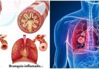 que es la bronquitis asmática