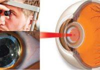como se hace la capsulotomia con laser