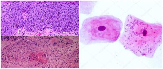 celulas epiteliales anormales