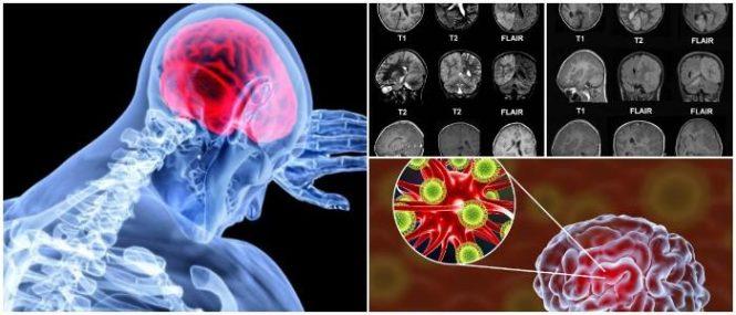 la encefalitis en niños