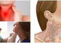 cuanto duran los ganglios inflamados en el cuello