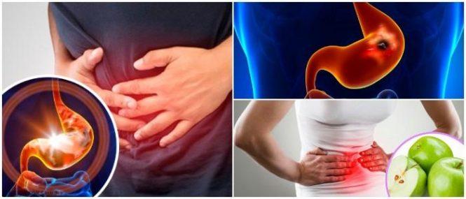 que es la gastritis antral