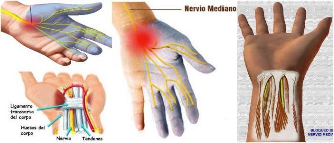 nervio mediano cubital y radial