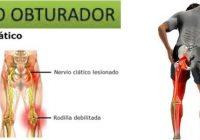 neurodinamia nervio obturador