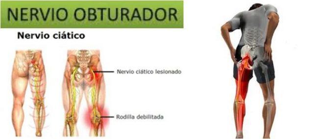 Nervio Obturador: Definición, Anatomía, Inervación, Relevancia ...