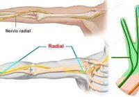 nervio radial de la mano