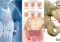 cual es el concepto de órganos vestigiales