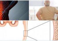 articulo de osteomalacia