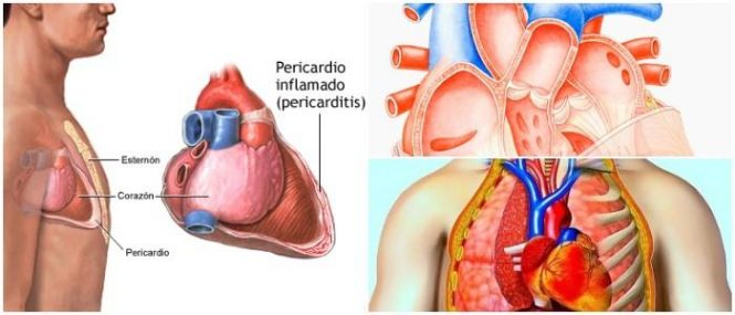 cual es la definición de pericarditis