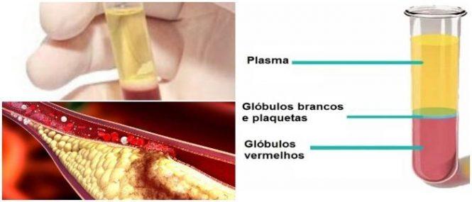 que es el plasma en sangre
