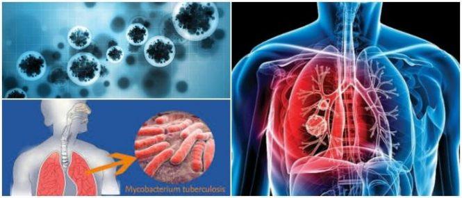 tuberculosis avanzada