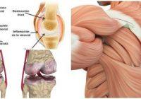capsula articular del hombro