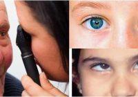 definición de diplopia vertical binocular