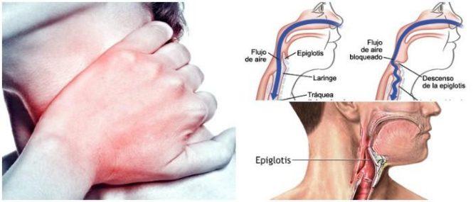 Epiglotis: Definición, Anatomía, Función, Patologías, Exámenes y ...