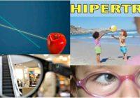 que es la hipertrofia de ojo