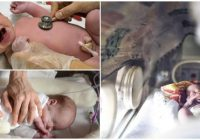 cuales son los riesgos de un bebé prematuro bajo en peso