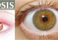 que son las pupilas mioticas bilaterales
